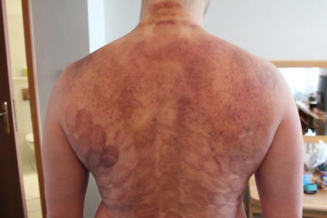 Wynik masaży uzdrawiających